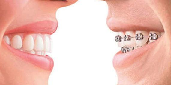 3-Different-Journeys-to-Straighter-Teeth-Gentle-Dental-Care