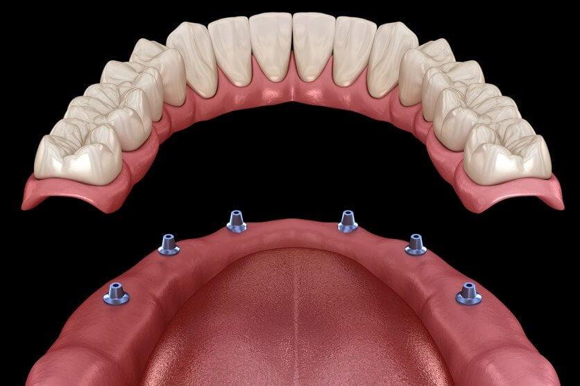 Dentures fitting