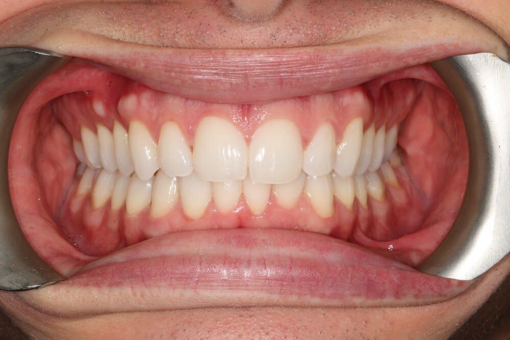 Gentle Dental - Straightening - after