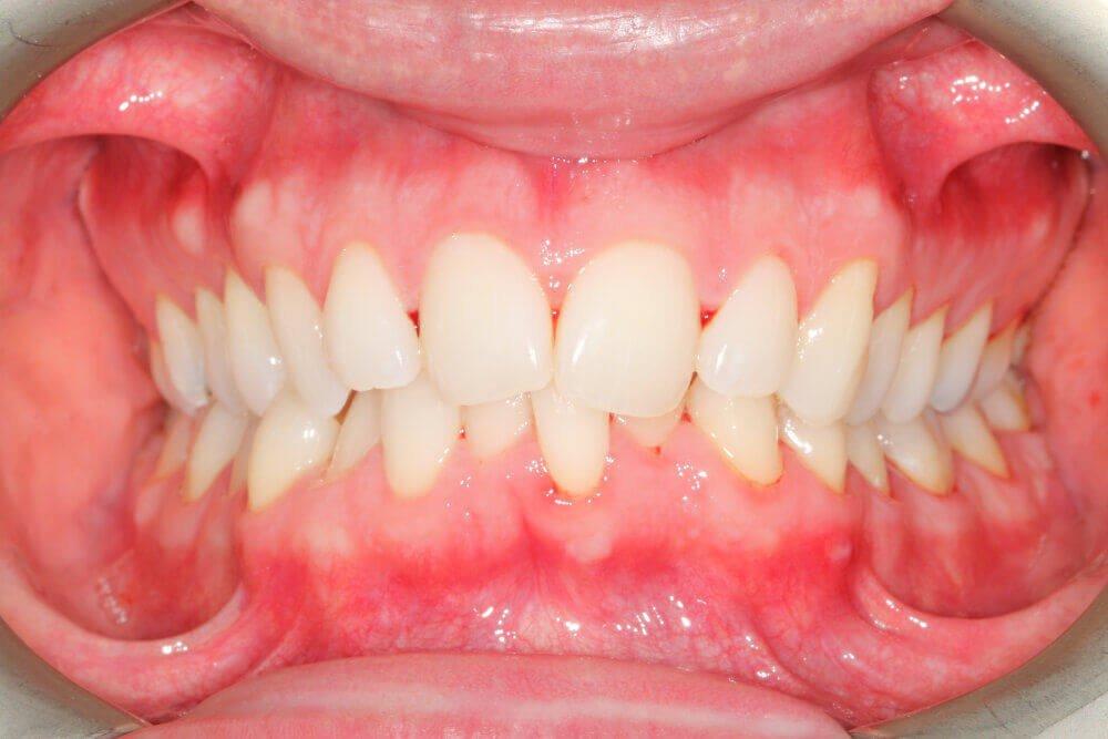 Gentle Dental - Straightening - before