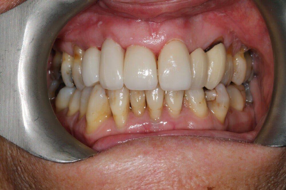 Gentle Dental - Teeth Whitening - after