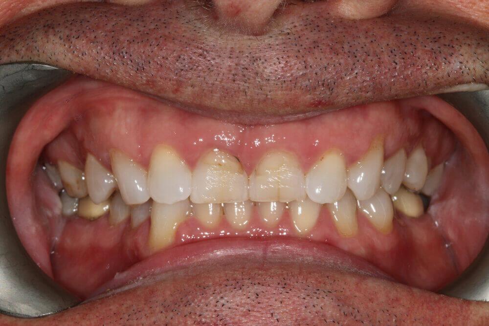 Gentle Dental - Teeth Whitening - before