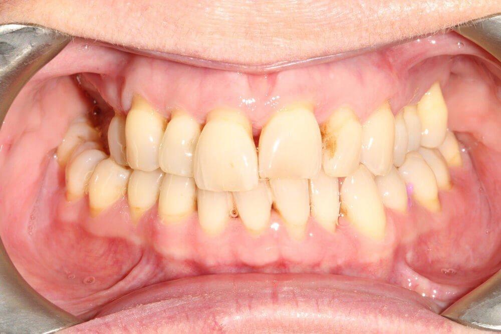 Gentle Dental - Teeth Whitening - before (8)