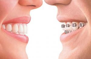 3 Different Journeys to Straighter Teeth - Gentle Dental Care