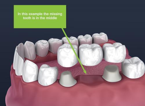 dental-bridge