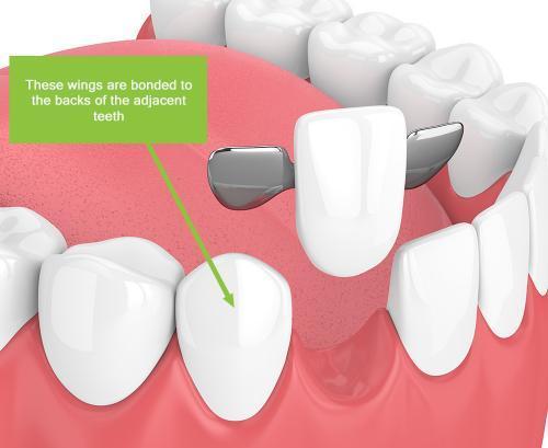 dental-bridge-wings
