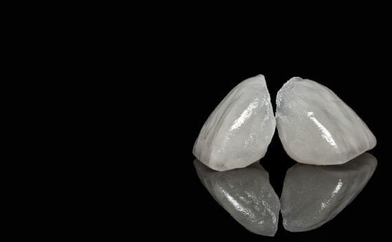 What material is used for dental crowns