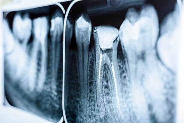 Everything you need to know about root canal treatment
